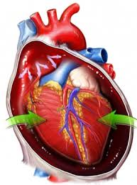 low cardiac output syndrome